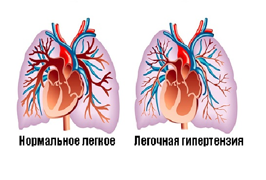 Viagra Pulmonary Heart Pictures